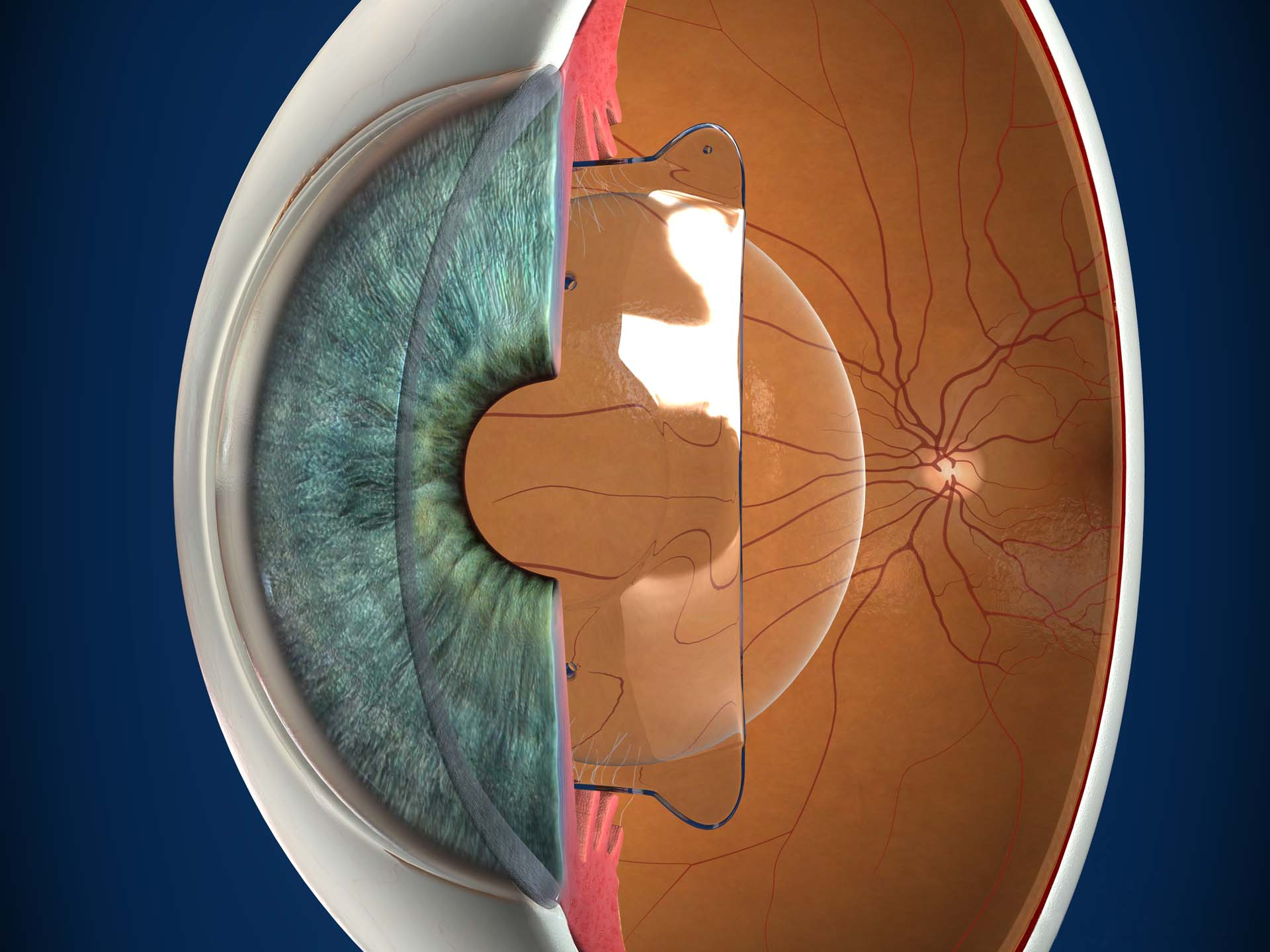 Chirurgie oculaire ICL