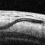 Chirurgie du glaucome