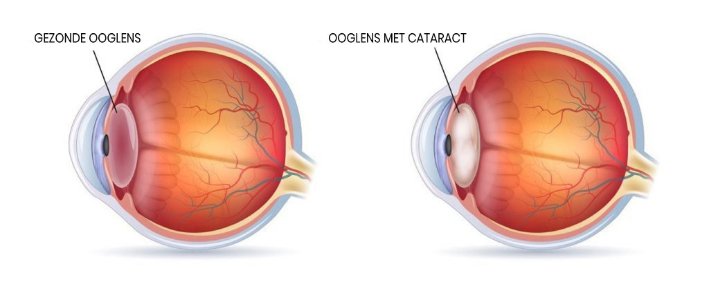 Ooglens met cataract