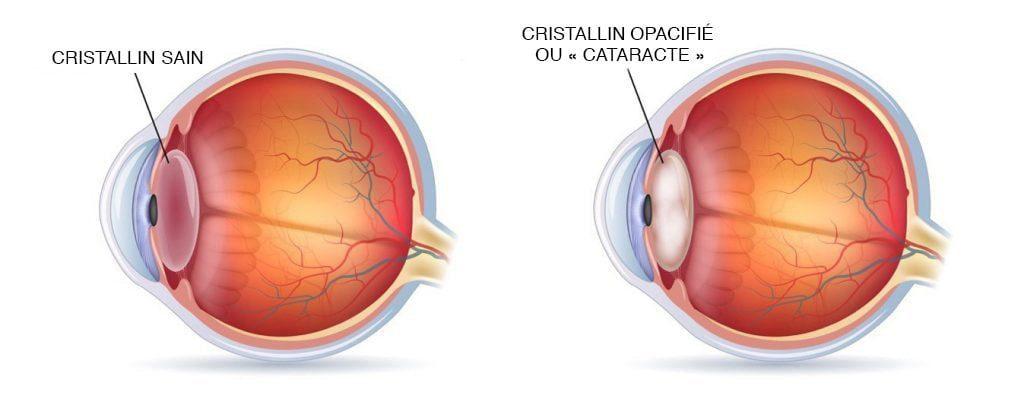 Cataracte - Schéma de l'œil
