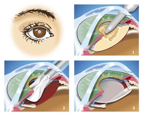 Les étapes d'une chirurgie de la cataracte