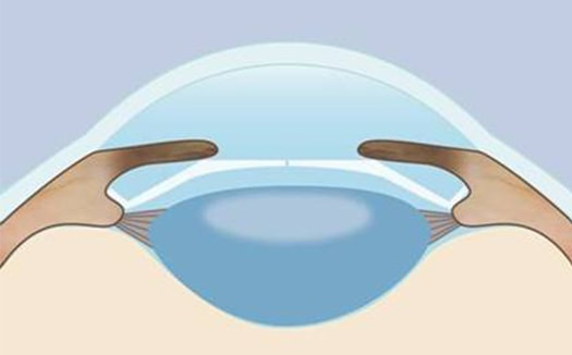 Implanteerbare Contact Lens